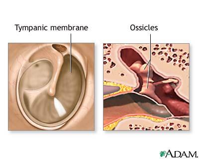 Mastoid Air Cells Mastoid Air Cells Diagram Ear